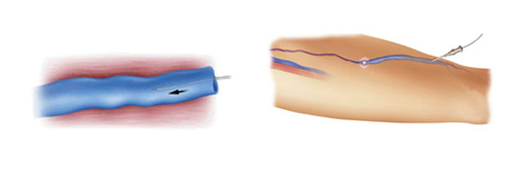 Intervention au laser endoveineux (EVLT)